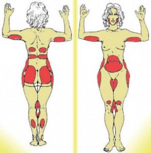 зоны тела для липосакции