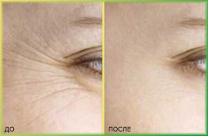 мезотерапия лица - морщины